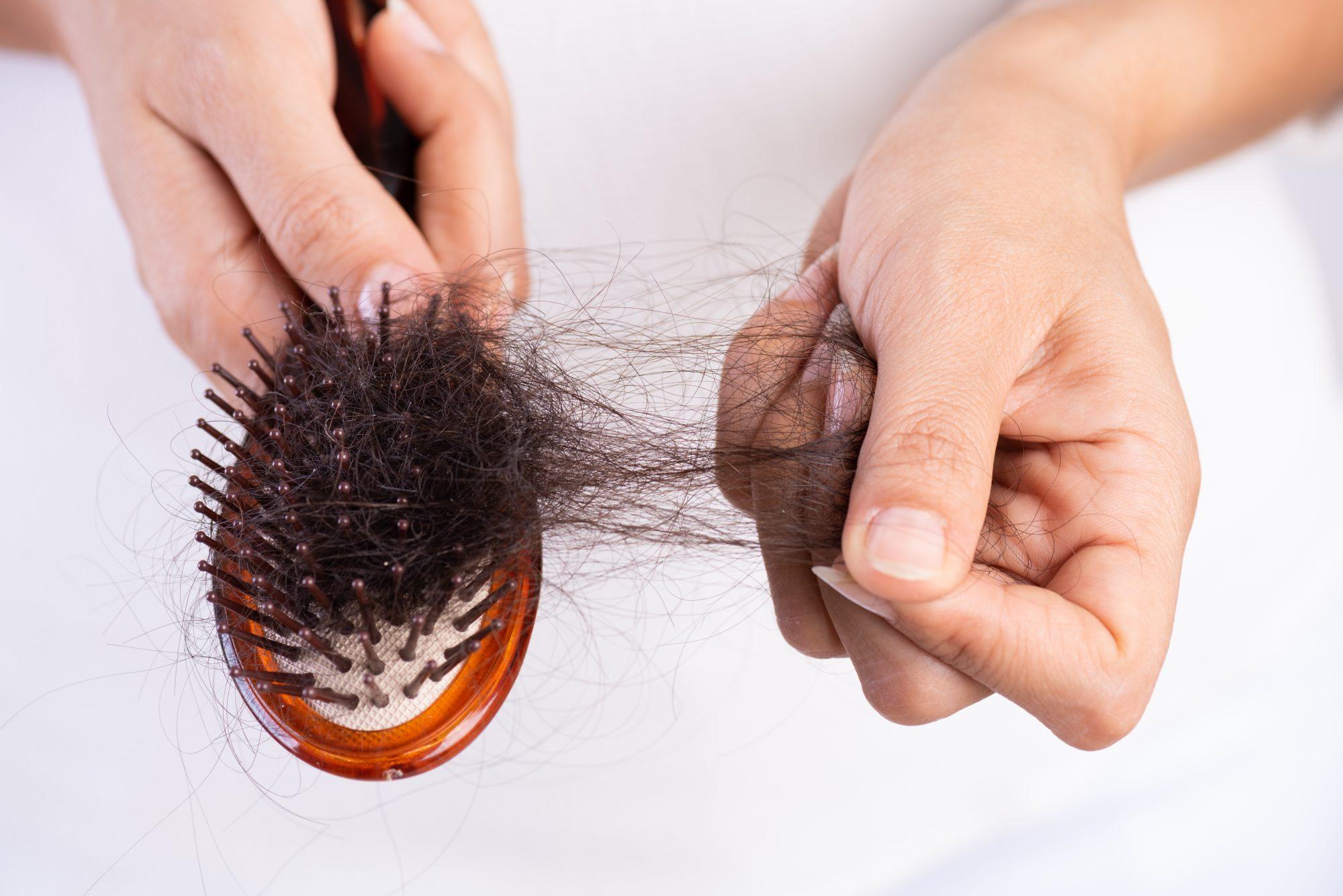 postpartum hairloss